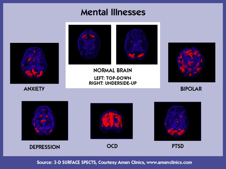 psychiatric disorders of the mind soc Biopsychosocial medicine the official journal of the  various academic domains including philosophy of mind,  psychiatric disorders are associated with.