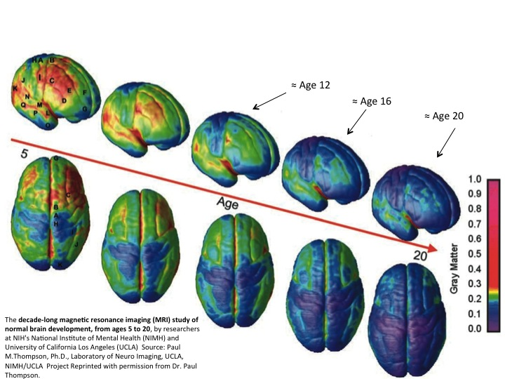Image 3: Time Lapse Study of Brain Development, ages 12 - 20. [Ages on scan added by author.] Image courtesy: Dr. Paul Thompson