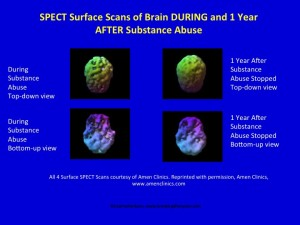 The Brain Can Change - Heal - Re-wire When Substance Abuse is Stopped