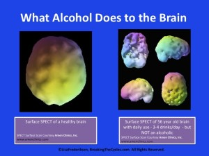 "New imaging technologies if the recent 15-20 years provide the visual ""proof' of brain changes caused by alcohol misuses."