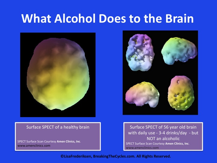 Of Images spacehero - Brain Alcohol Diseased
