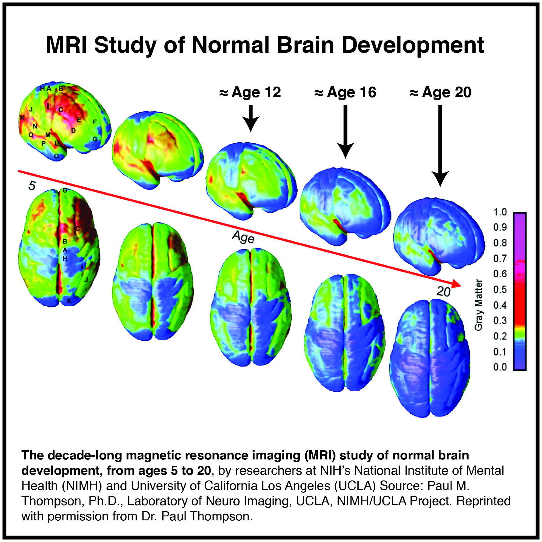 This image gives us a visual of the significant brain developmental changes occurring from ages 5 – 20. It's now understood this brain development continues through age 22 on average for girls/women and 24 on average for boys/men.